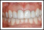 Dental Crowning After - Eastwood DentalCare
