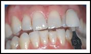 Teeth Whitening Before BriteSmile - Eastwood DentalCare