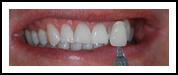 Teeth Whitening After BriteSmile - Eastwood DentalCare