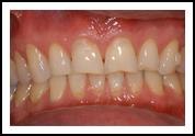 Dental Crowning Before - Eastwood DentalCare