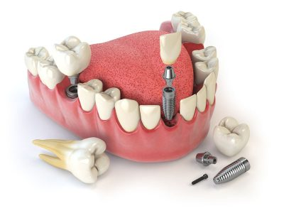 Eastwood DentalCare Dental Crown and Bridges-rs